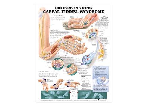 Anatomisk Affisch, Karpaltunnel syndromet.