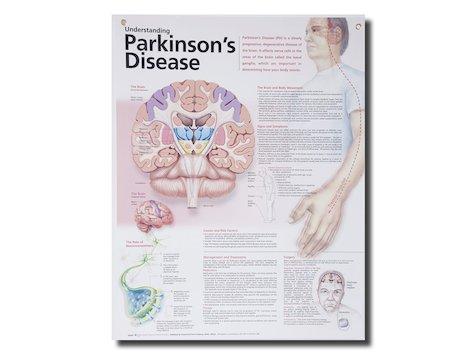 Anatomisk Affisch, Parkinssons Syndrom.