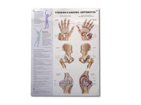 Artrit affisch, Anatomi Affisch, 50 x 60 cm.